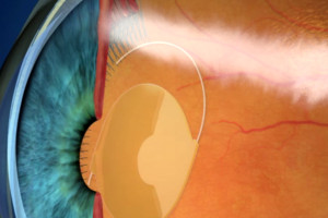 Dropless™ Cataract Surgery